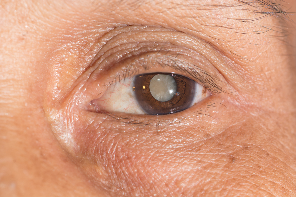senior with cataract in eye